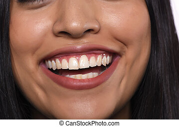 Woman with white healthy teeth smiling.