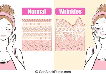 woman with wrinkles problem