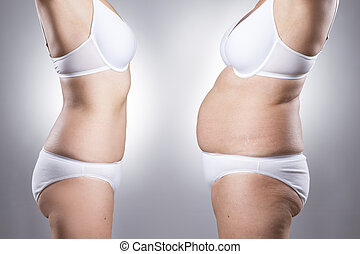Woman's body before and after weight loss - SONY DSC