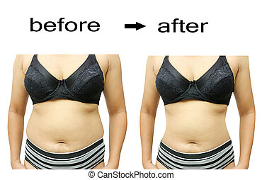 after a diet - Woman's body before and after a diet