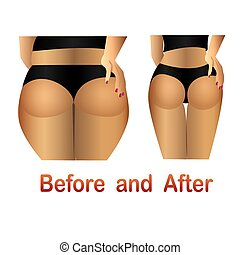 Woman's body before and after fitness, yoga.