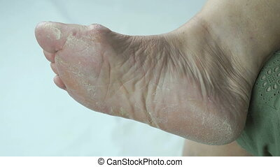 Old sick woman's feet has fungal infections of toenails