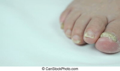 Woman's feet has fungal infections of toenails - Old sick...