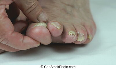Aged sick woman's feet has fungal infections of toenails