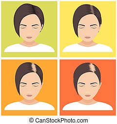 Women hair loss stages