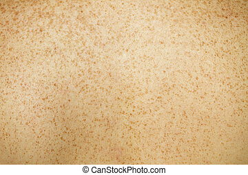 Caucasian Female Back Skin showing assortment of freckles.
