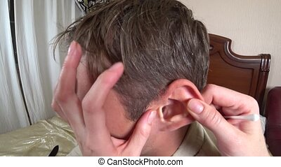 women's hands cleans the ear of a man. with a cotton swab,...