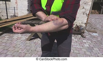 Worker with arm injury