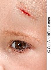 Wound child - Physical injury blood wound skin human child...