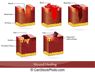 Wound healing - The process of wound healing. Illustration...