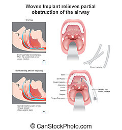 Woven Implant relieves partial obstruction of the airway. -...