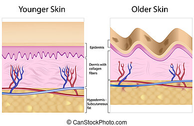 Old skin with age spots and wrinkles caused by atrophy of the dermis (loss of collagen fibers), epidermis and blood vessels leaking. Eps8