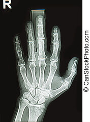 wrist and hand x-rays image show fracture bone on finger splin