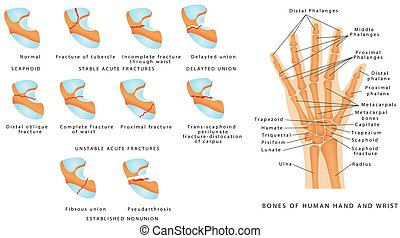 Wrist fracture (Scaphoid). Classification of scaphoid ...