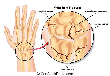 wrist joint fractures - medical illustration of the various...