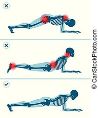 Wrong and correct plank position. Right and wrong execution ...