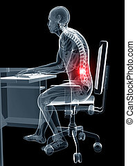 Wrong sitting posture - 3d rendered illustration of a man ...