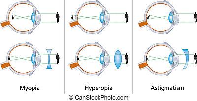 wzrokowy, defekty