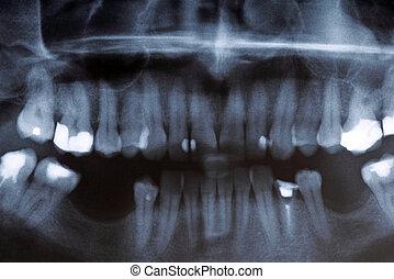 x光, 掃描, ......的, 人類, 牙齒