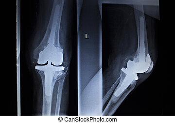 x光, 整形外科, 掃描, ......的, 膝蓋, 新月, 植入, prosthetics