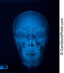 x 光線, フィルム, の, 頭骨