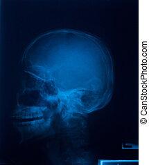x 光線, フィルム, の, 頭骨, 側面
