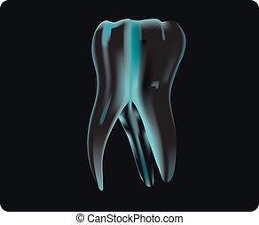 x 線, の, ∥, 歯