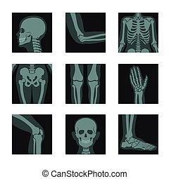 x 線, 足, 手, 骨, 打撃, 接合箇所, 頭, スケルトン