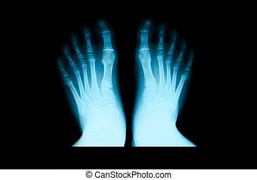 x 線, foot.
