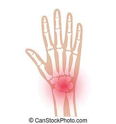 x, arthrits, raio