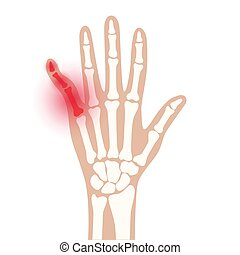x, arthrits, strahl