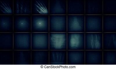 x promień, tło, obraz