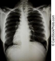 x-ray., borst