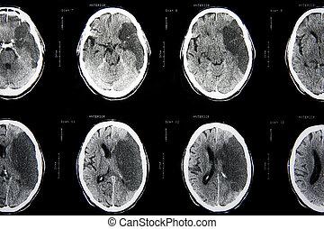 X-Ray Diagnostics