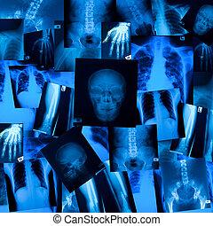 X ray film background