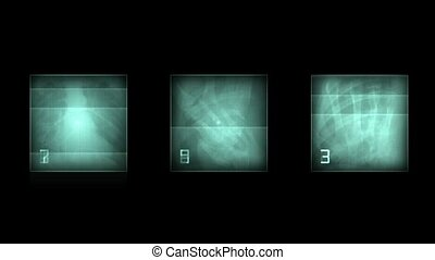x-ray film, human skeleton. PAL. abstract background.