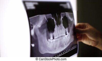 X-ray film of teeth and jaw.