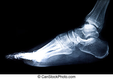 x-ray film - x-ray of foot on black background
