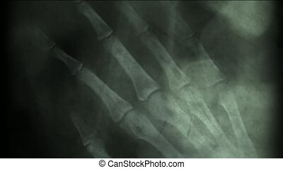 x-ray film,human skeleton,finger bone. abstract background.
