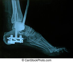 X-ray, foot. - X-ray, röntgen picture of a foot, with nails...