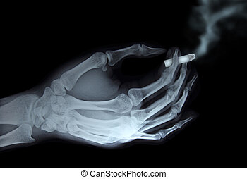 x-ray hand holding cigarette