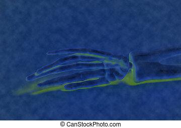 X-ray hand - X-ray  human skeleton hand