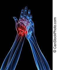 x-ray hands - arthritis - 3d rendered x-ray illustration of...