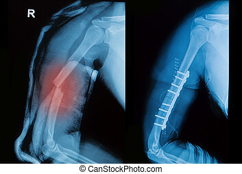 x-ray image of borken arm bone show pre- post operation (Anatomy of fracture humerus )