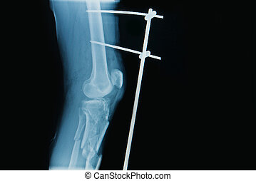 x-ray image of fracture leg ( tibia )with implant external fixat