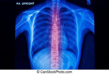 x-ray image of human spinal column