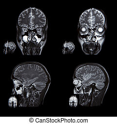 X-ray image of the brain computed t