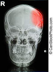 x-ray image of the painful or injury skull , head injury -...