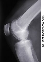 X-Ray knee sideview - X-ray side-view of a knee.