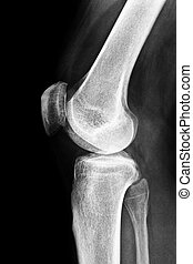 X-ray of a human knee